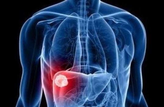 Λιπώδης Διήθηση – Πόσο επικίνδυνο είναι το λίπος στο συκώτι?