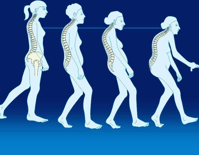 """Οι κακές συνήθειες που """"βοηθούν"""" την οστεοπενια – οστεοπόρωση."""